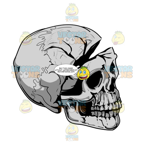 Human Skull Looking Right With Cracked Detached Cranium