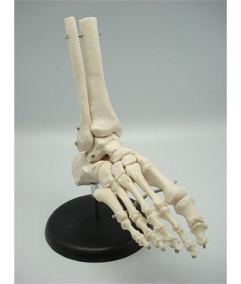 Foot Joint - Tredan Connections