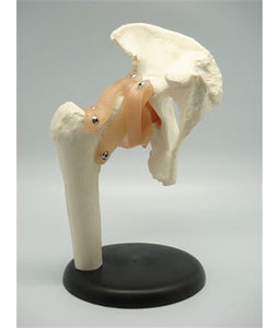 Hip Joint - Tredan Connections