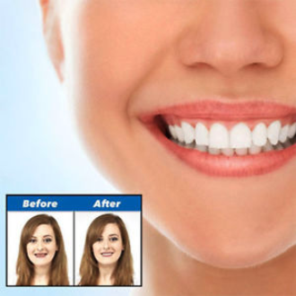 The Original Snap On Smile Amazing Perfect & Confident Smile Clip On  Veneers. - ZefTe