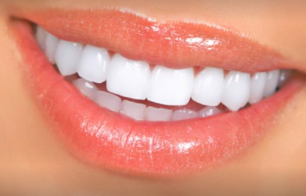 Snap On Smile Veneers that you can eat with. - ZefTe