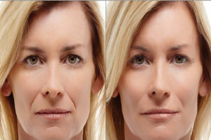 Acupressure Facelift