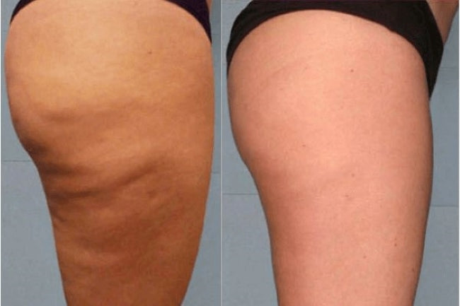 Cellulite Release (In Call)