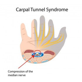 What Is Carpal Tunnel Syndrome? Anatomy, Symptoms & Treatment Discussed