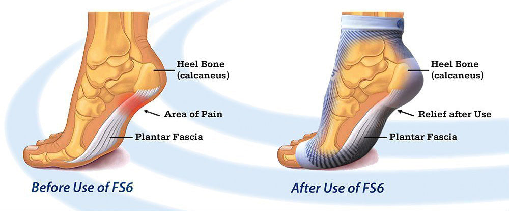 before and after fs6 plantar fasciitis