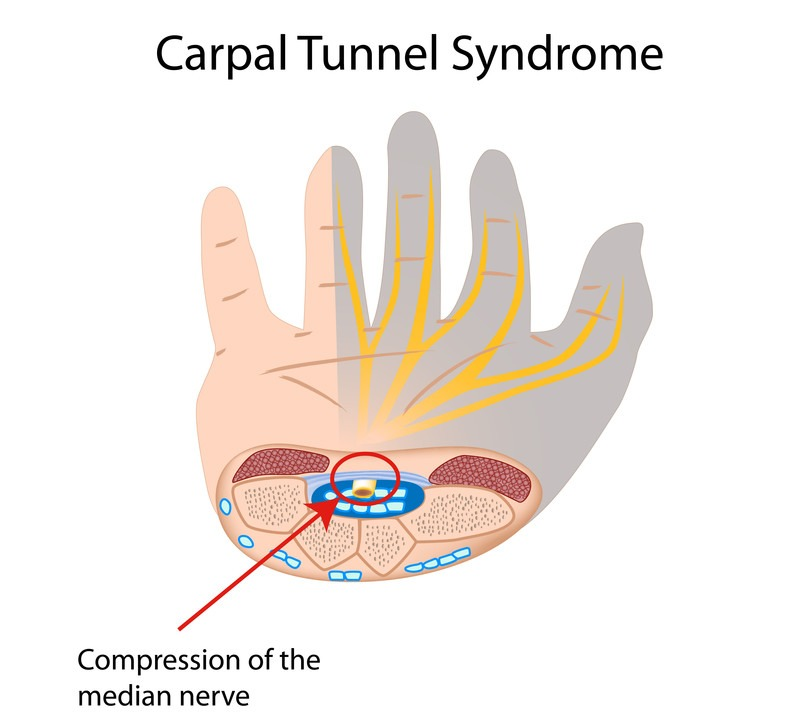 medial nerve compression causing carpal tunnel syndrome
