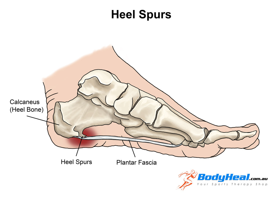 heel spurs injury anatomy