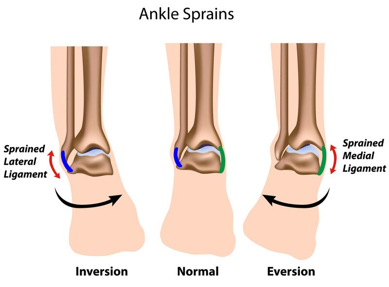 lateral and eversion ankle sprain difference