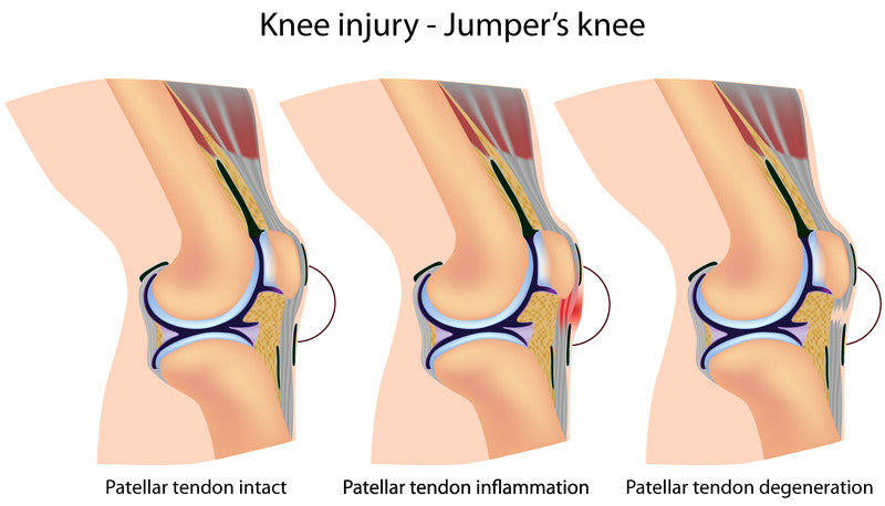 Jumpers knee patella tendon image