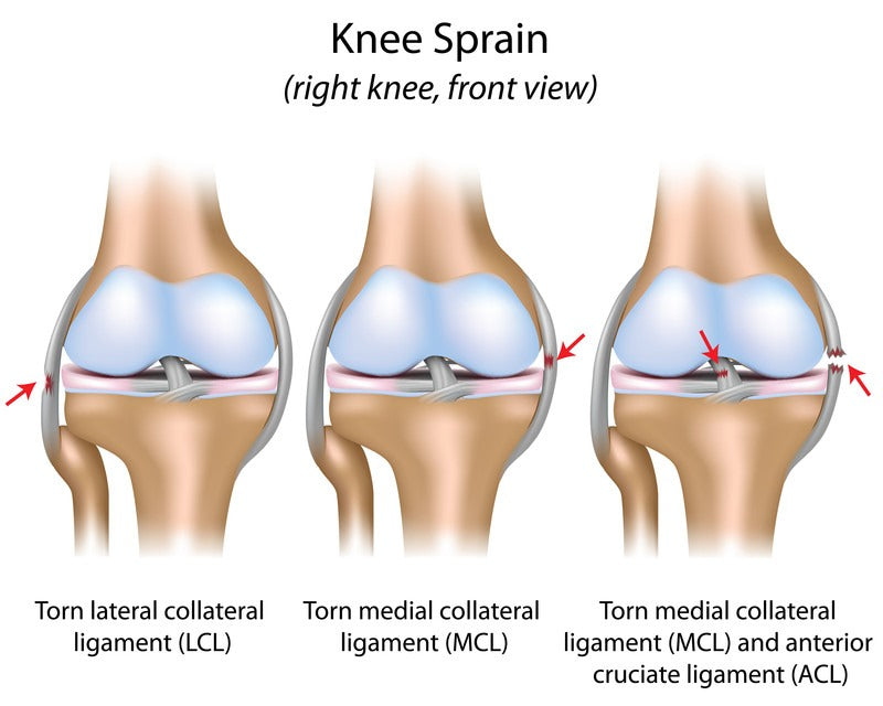 knee sprain anatomy
