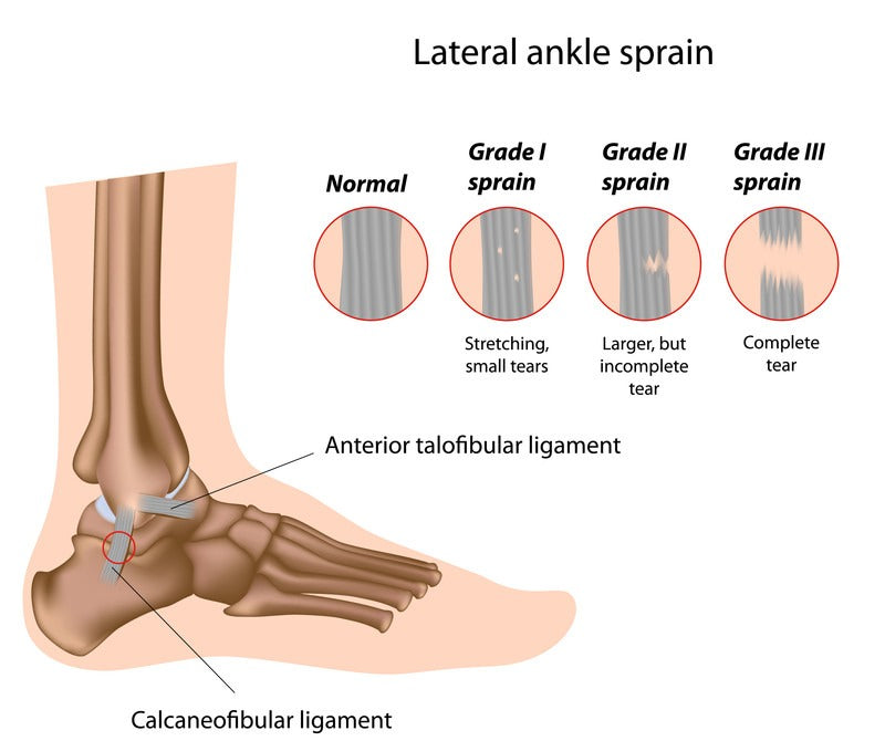 difference between ankle sprain grades for lateral sprain