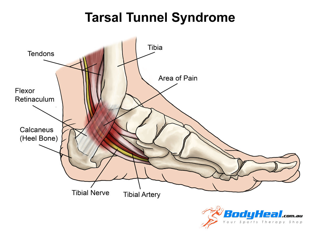 tarsal tunnel syndrome anatomy