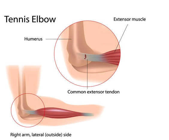 anatomy of tennis elbow inflammation