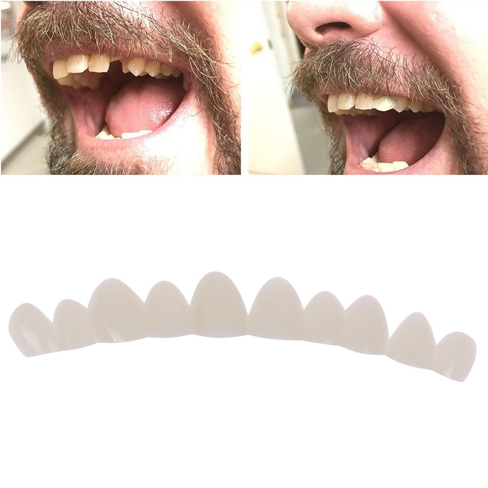 Instant Smile Temporary Tooth Kit Easy Temporary Replace