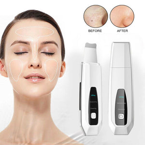 Facial Pore Cleaner Blackhead Peeler Remover Ultrasonic Face Beauty Machine