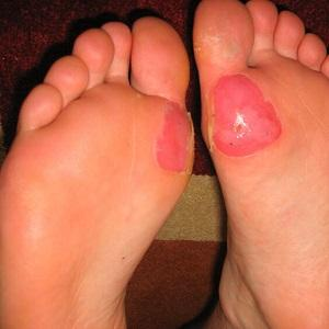 blister on ball of foot