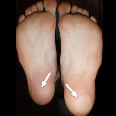 How To Prevent A Blister UNDER Your Heel