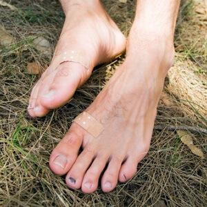 toughen skin for blisters