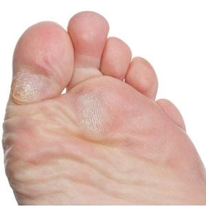 do callouses prevent blisters