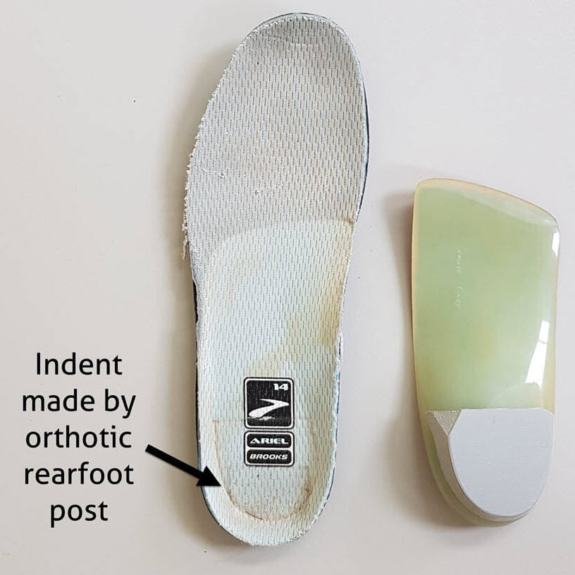 posterior heel edge blisters from orthotics