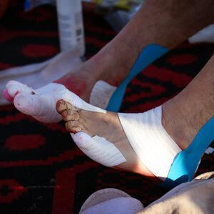 blister tape for feet at an ultramarathon