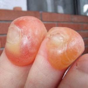 toenail blisters from John Vonhof, Fixing Your Feet