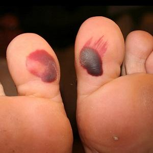 blood blisters on big toes