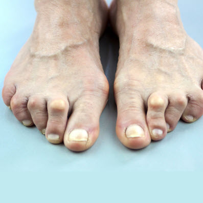 Hammertoes and Blister Prevention