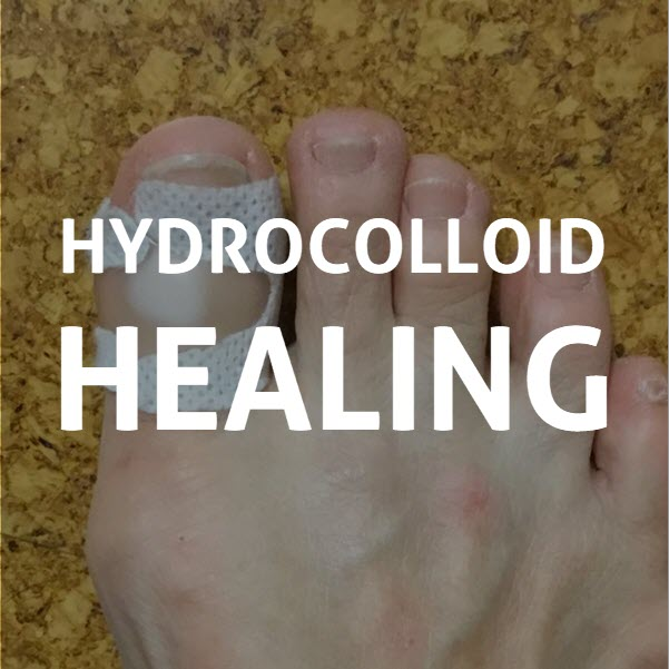 hydrocolloid healing white bubble