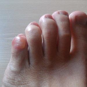 pinky toe blister