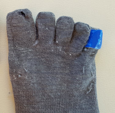 Using an Engo patch to prevent and treat pinch blisters when wearing toe-socks