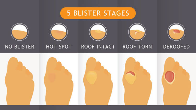 the five blister stages