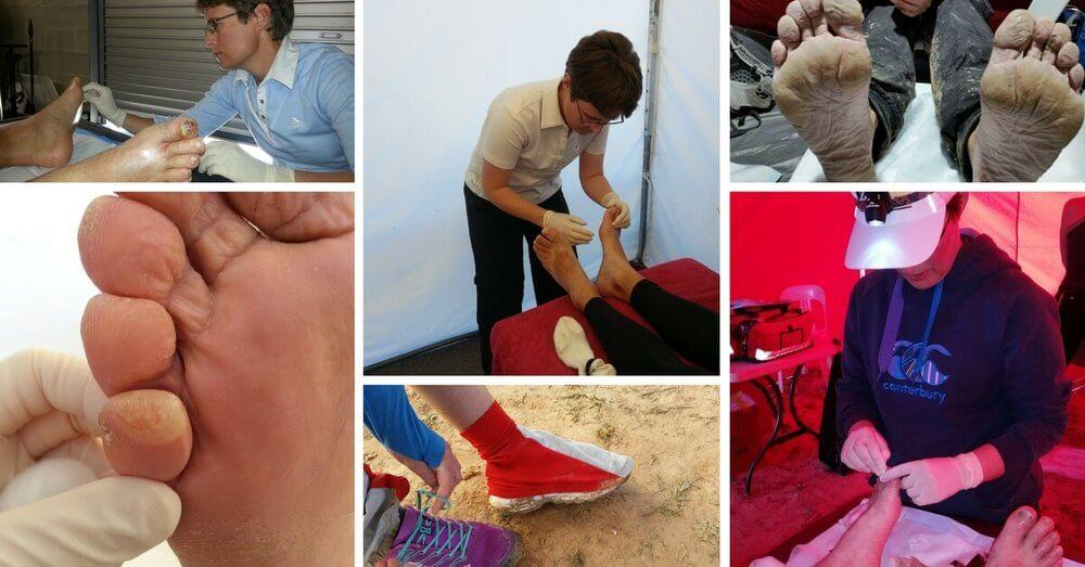 About Rebecca Rushton and Blister Prevention