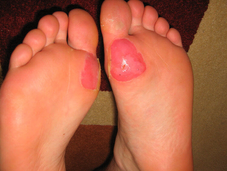 blisters on bottom of feet