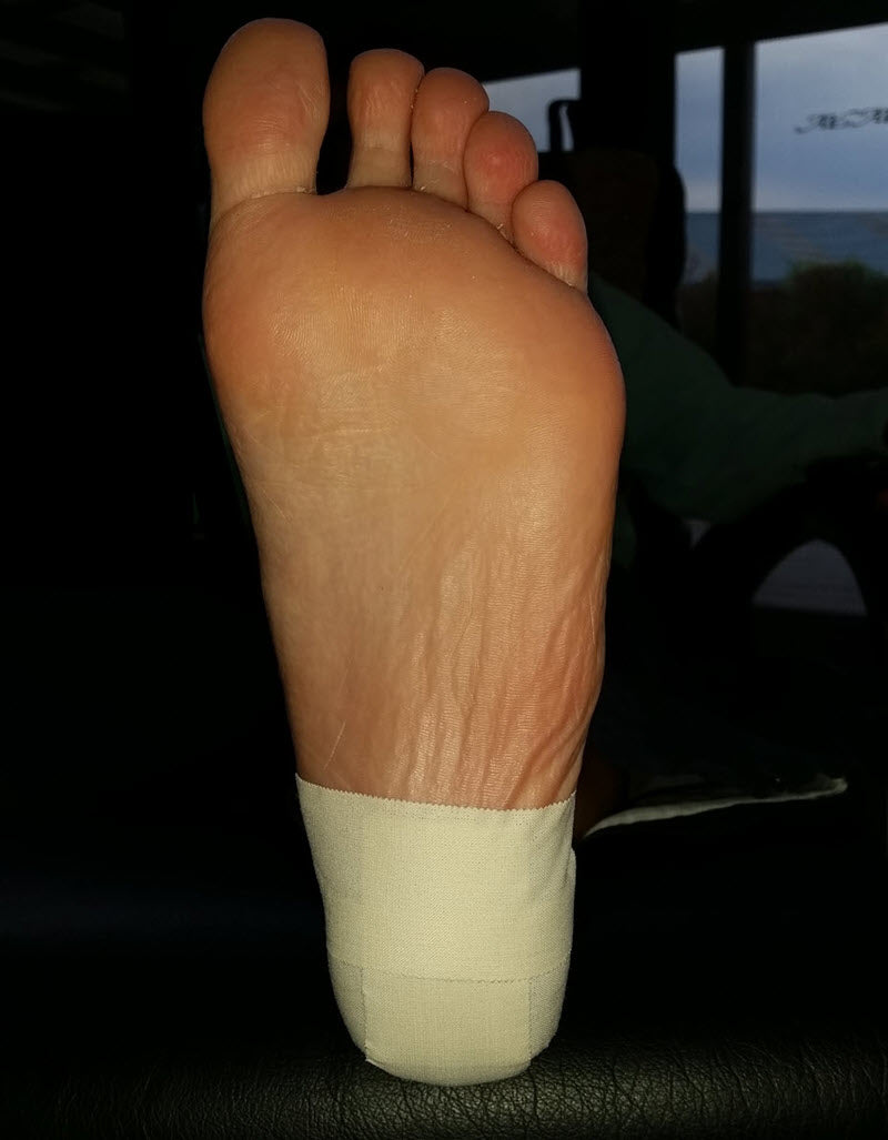 Taping to Prevent A Blister UNDER Heel