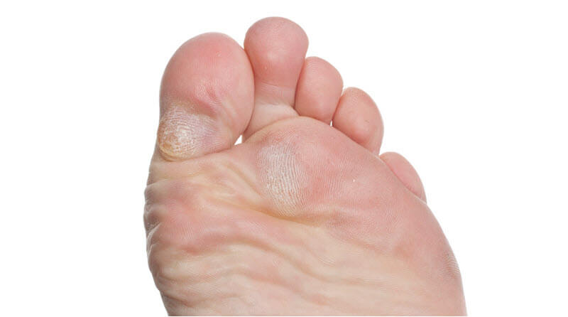 Imagine a blister under callous like this - ouch!