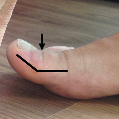 Big toe cocked-up can cause toenail blisters of the big toe