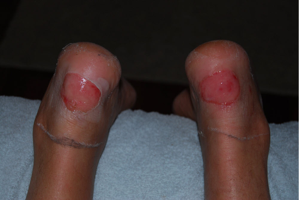 Bad deroofed blisters