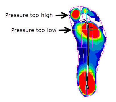blood blisters on feet do\u0027s and don\u0027ts blister preventionpeak pressure under foot