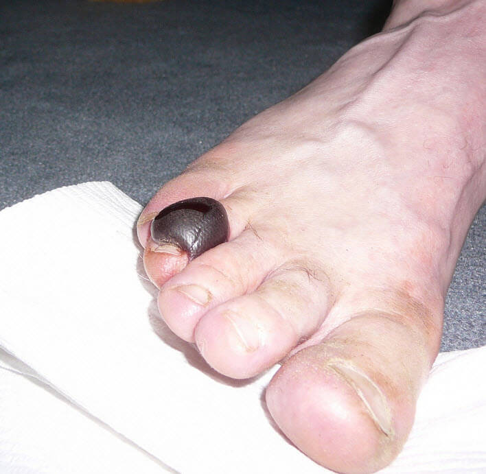 toe blood blister