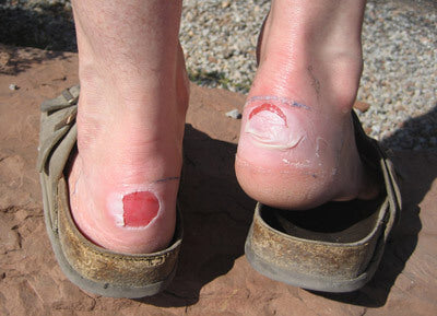 Wear shoes around camp that won't put any pressure on your blister Image credit: www.pcds.org.uk