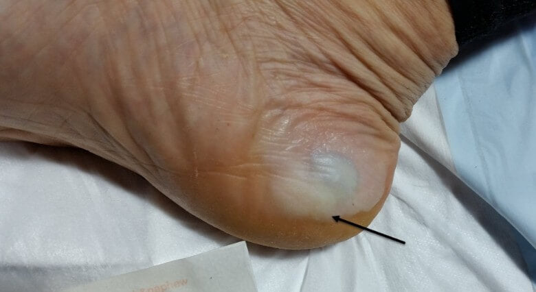This is a macerated but intact medial heel edge blister which is blood-filled.