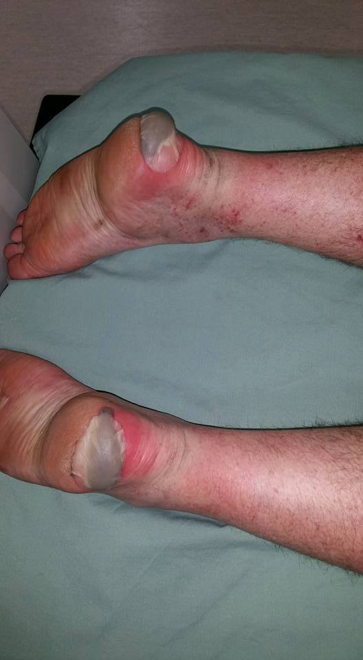 Your worst blister experience: heel edge blood blisters
