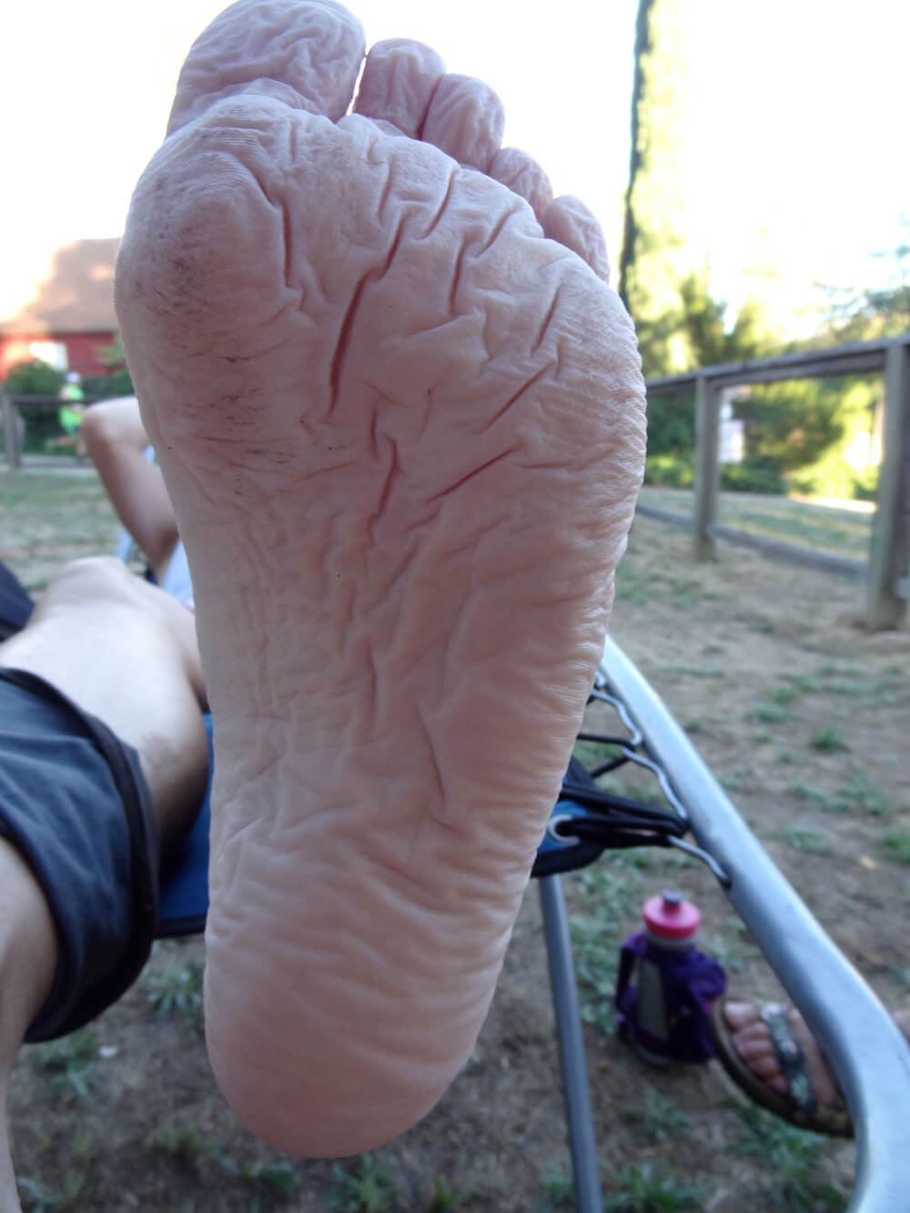 severe intact trench foot in an ultramarathon