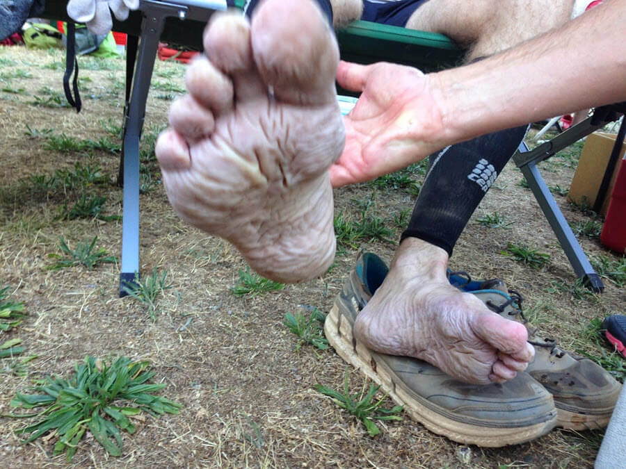 What is trench foot - white wrinkly macerated feet