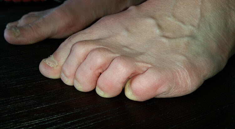 curly pinky toe is commonly blistered