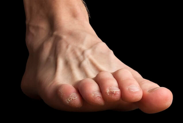 Clawed toes cause weightbearing pressure to be exerted on the end of the toenails