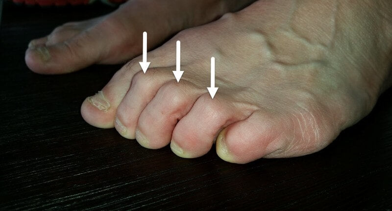 5 Ways To Beat Blisters On The Tops Of Your Toes