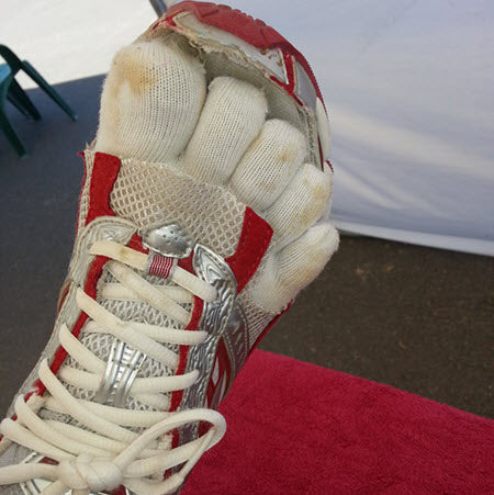 Pressure relief for the toes from the sides. In addition to toesocks, the toes are taped with Rocktape.