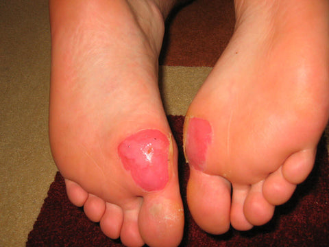How to treat a deroofed blister: Your main aim is to get good skin healing and preventing infection.